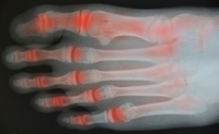 What Are the Signs and Symptoms of Rheumatoid Arthritis?