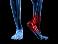 The Heel and Plantar Fasciitis