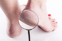 What Can Cause Cracked Heels?